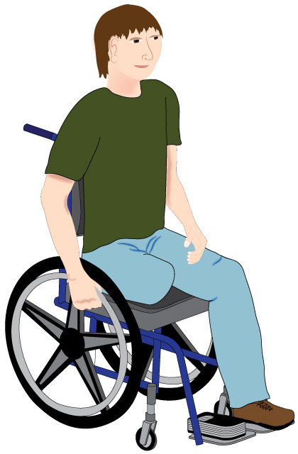 Wheelchair Positioning Amputee Counterbalance